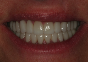 Kim's smile after TMJ treatment and cosmetic dentistry.
