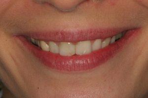 before-smile-use-photo