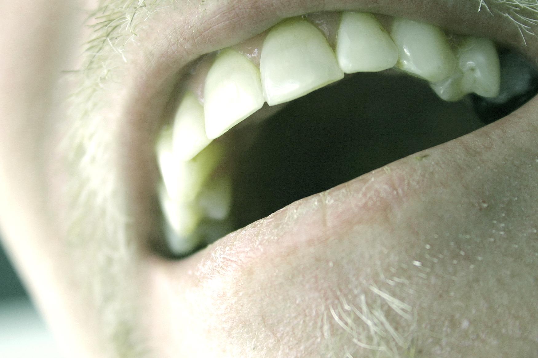 man-open-smile-with-teeth.jpg