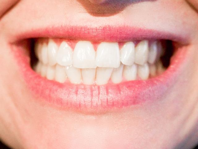 teeth-1652976_640.jpg
